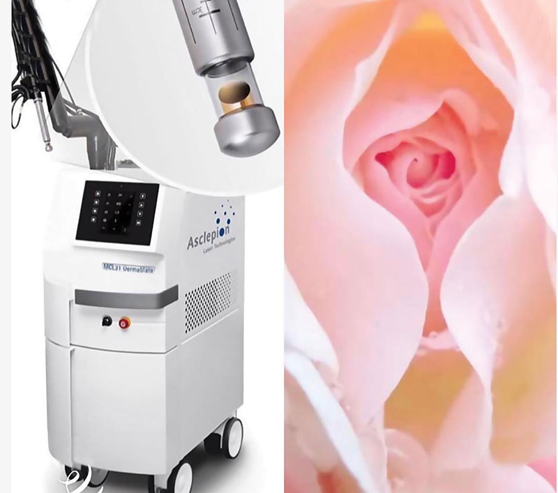 Эстетическая гинекология — современный тренд или необходимость?
