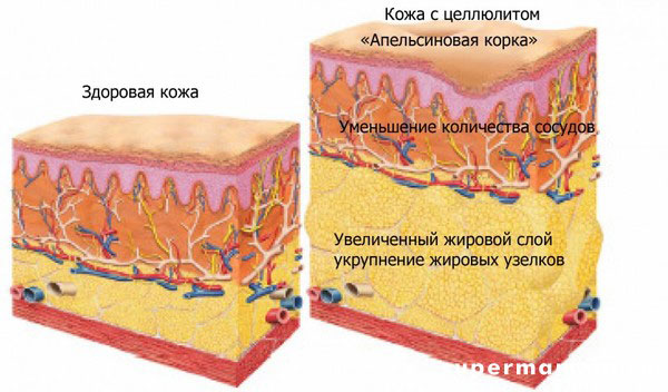 Основные причины появления целлюлита